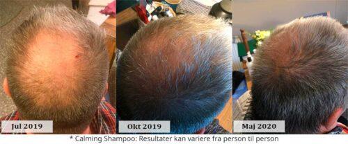 shampoo så håret vokser hurtigere